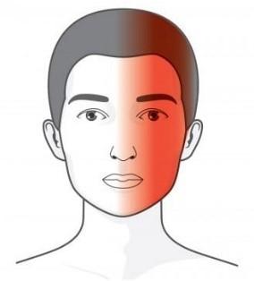 Gimdos Kaklelio Stuburo Dalis Be Stuburo Artrito Simptomai Priežastys Gydymo Metodai  Alkūnė 2021