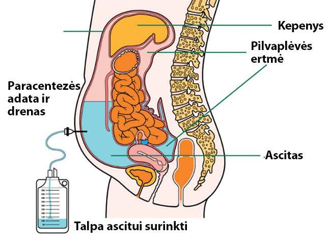 ascitas su hipertenzija