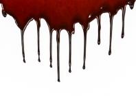 Pilna kraujo formulė: interpretacija ir dažniausios patologijos