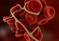 Tromboprofilaktika nechirurginiams ligoniams. Profilaktinio gydymo MMMH gairės